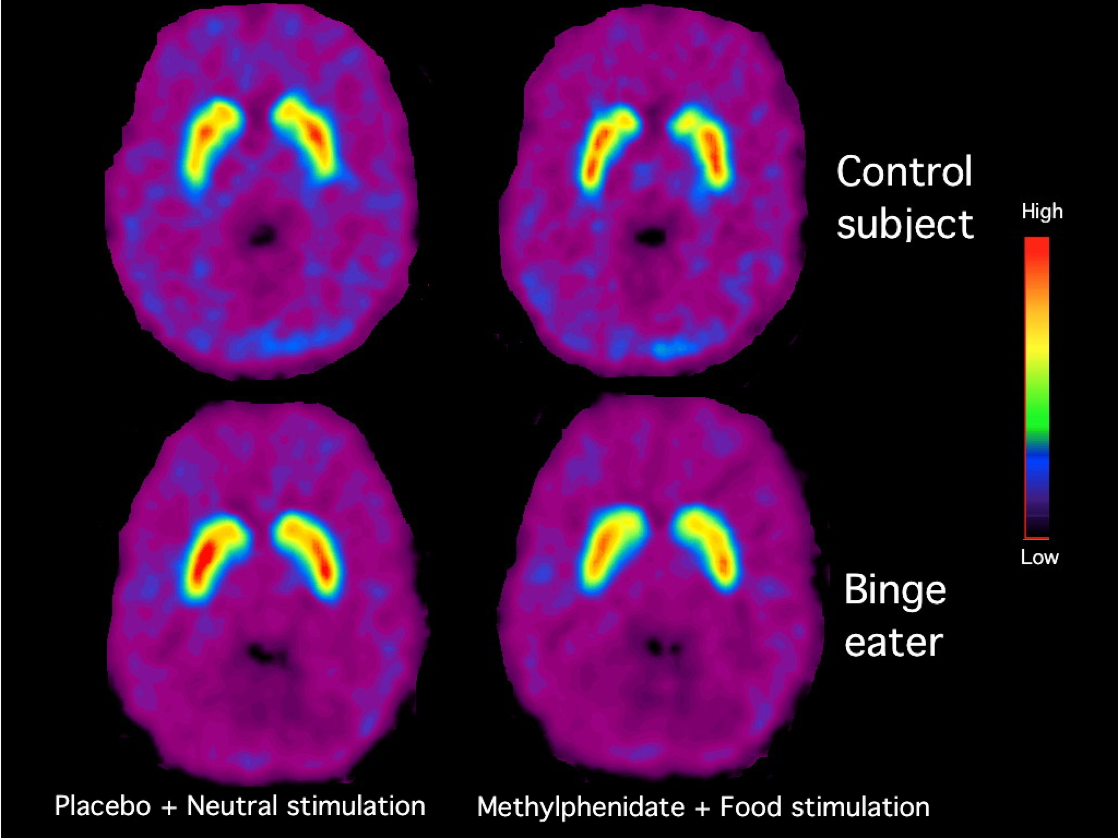 brain motivation incentive The incentive sensitization theory focuses on sensitization-induced changes in incentive motivational processes and related changes in the brain, but we have acknowledged that other brain changes contribute importantly to addiction too, including damage or dysfunction in cortical mechanisms that underlie cognitive choice and decision making (robinson & berridge 2000, 2003.