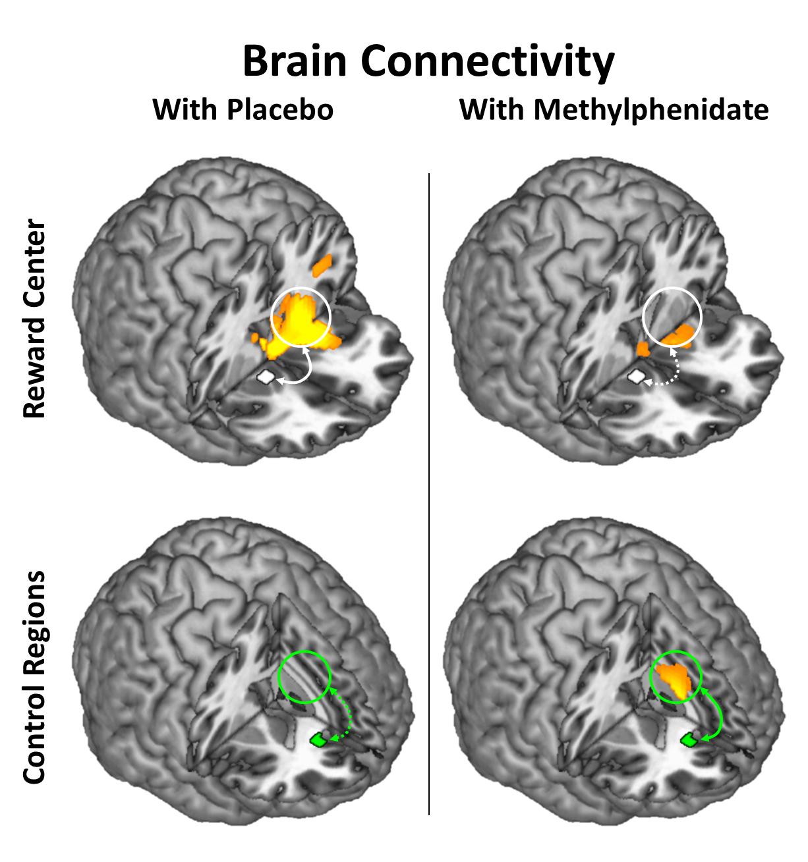 Methylphenidate Modulates Brain-Circuit Connectivity in