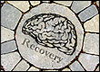 Ritalin improves brain function