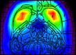 rat brain PET scan